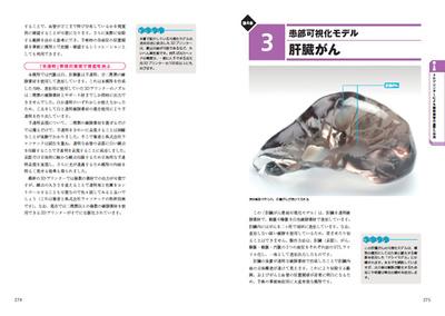 「第4章 3Dプリンターによる臓器模型の造形と活用」より。著者が実際に作成してきた臓器模型の具体例を,そのノウハウとともに多数解説しています
