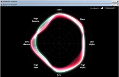 図2 脳波の様子